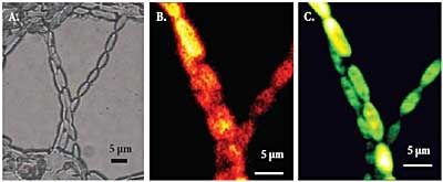 Microalgae seen by bright field microscopy (A), Raman microscopy at beta-carotene line (B), and confocal microscopy of autofluorescence (C). Sample courtesy of Dr. Don McNaughton, Monash University, Victoria, Australia.