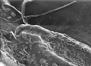 Hair root showing the follicular tag piece of skin used to show whether hair was forcibly removed from the scalp follicle (uncoated).