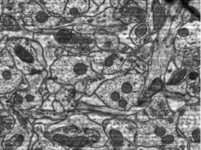 Rat hippocampus zoom images from a single tile of 24 k × 24 k pixels.
