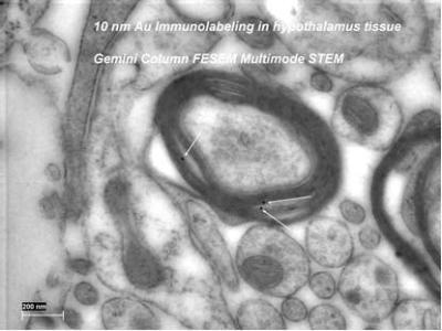 The STEM image of 10 nm immunogold labeled rat hypothalamus in Lowicryl HM20 epoxy, no post stain.