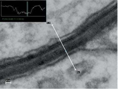 The STEM image of a myelinated axon sheath in unstained rat hippocampus ultra section with 3 nm spacing.