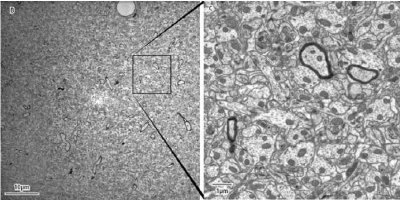 (B) A single 49 µm STEM-in-SEM image, acquired at 2 nm per pixel. The inset square illustrates the comparative size of a TEM image acquired on a 4 k x 4 k camera, also at 2 nm per pixel.(C) Detail from an approximately 9 µm x 9 µm region of Image B. Note the image quality is comparable to results obtained by conventional TEM. At full resolution, key organelles are readily resolved including (D) post synaptic densities at synapses, (E) polyribosomes and (F) crosssectioned microtubules suitable for serial tracing and dense reconstruction. Results courtesy of John Mendenhall, Center for Learning and Memory, University of Texas at Austin.
