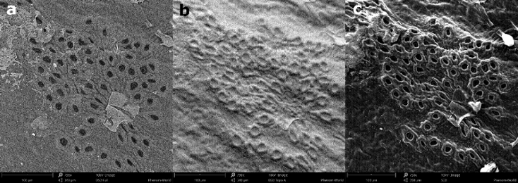 a) Full BSD, b) Topography BSD and c) SED image of a leaf.