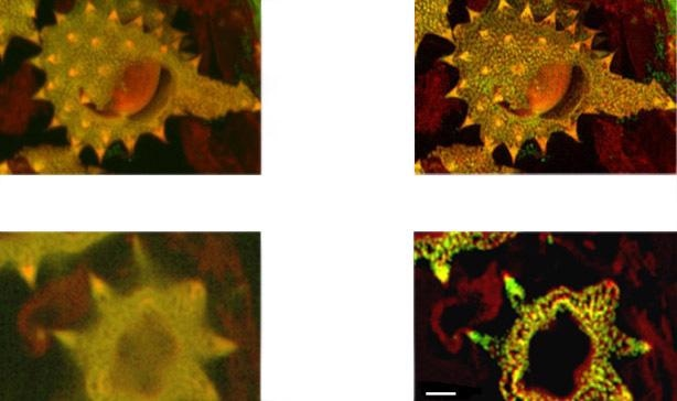 (above). Shows detail at full resolution from image in A above. Surface clarity is enhanced as well as sharpness and resolution improvement in individual pollen grain. Fig 14 c (below) shows single optical section from two channel daisy pollen Z series. ClearView-GPU enhances contrast, sharpens optical sectioning and provides clear channel separation in this thick bright specimen. Fine structures within the walls of the pollen grains become clearly visible. These punctate features are in the range 150-200 nm FWHM after deconvolution. Scale bar is 2 µm.