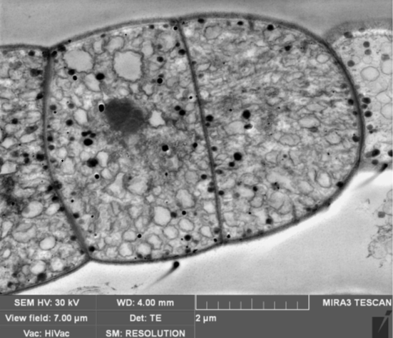 STEM Bright Field Image of sectioned tissue