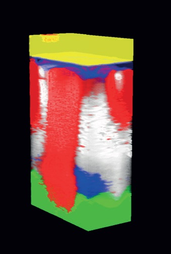 3D Raman map of a multilayer film polluted with anoutlier (white). Yellow: Polypropylene, Blue: Polyethylene, Red:Polyethylene low-density, Green: Polyvinyl-chloride, White:Polyamide.