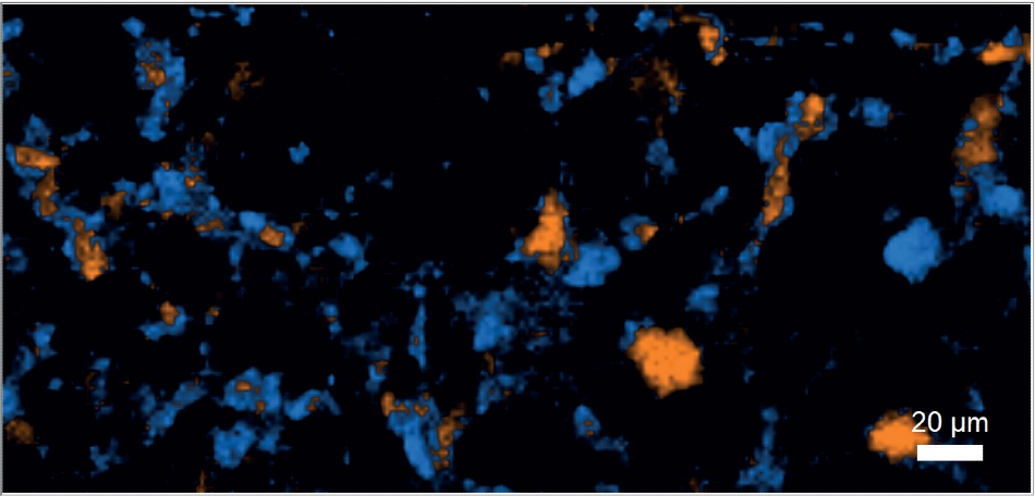 Carbamazepine distribution in tablet (blue: Form I, orange: Form III, black: excipients).