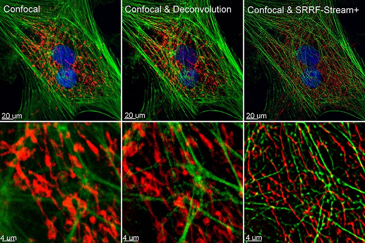 Comparison between confocal imaging, confocal imaging & deconvolution and confocal imaging & SRRF-stream+. High magnification close ups are present for a better visualisation of the obtained resolution. BPA cells stained with phalloidin, mitotracker and DAP image with Ixon 888 in confocal mode (no SRRF) and confocal mode with SRRF-stream+.