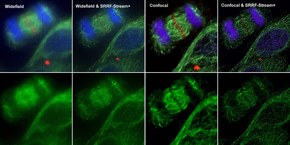 Comparison between different imaging modes (widefield and Confocal) with and without SRRF-Stream+Hela cells stained for MLKP1(red), a-tubulin(green-microtubules) a and DAPI (blue-DNA) were image in the Dragonfly with an Ixon888 camera.