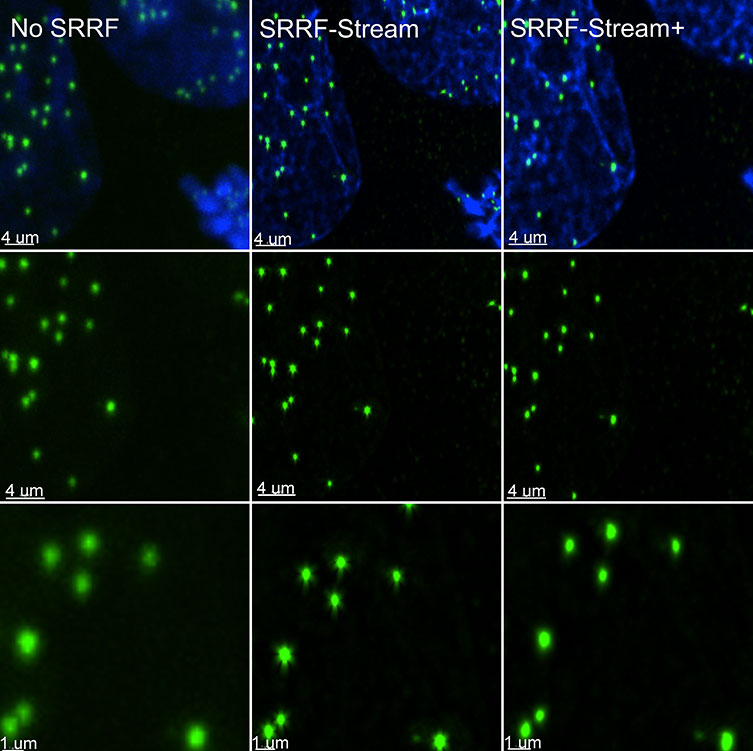 SRRF stream+ delivers high-quality data. At very high magnifications, in specific structures, such has kinetochores some Star artefact could occasionally appear. SRRF-Stream+ radiality computation in 24 directions eliminates the star artefacts. Hela cells stained for Cenp-A (green-Kinetochore) and DAPI (blue-DNA) were imaged in the Dragonfly with an Ixon888 Ultra camera.