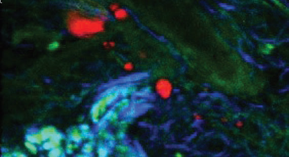 TPF (green), CARS from subcutaneous lipid deposits (red) and SHG from collagen (blue) of tissue from a mouse tail.