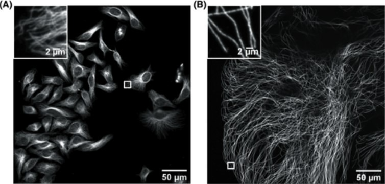 Confocal image of HeLa cells non expanded microtubules (right) and 4.5x linearly expanded microtubules (left).