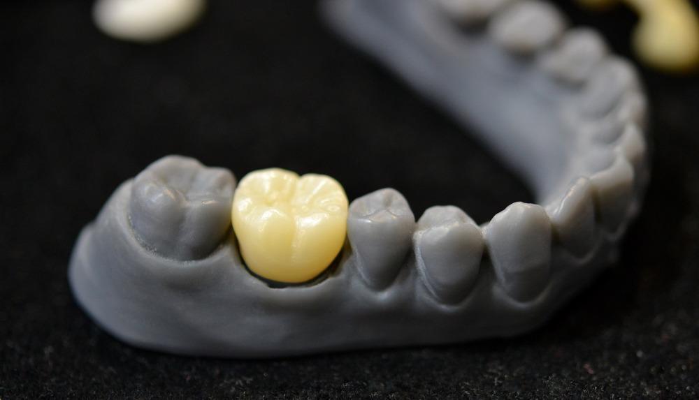 3d printing, teeth