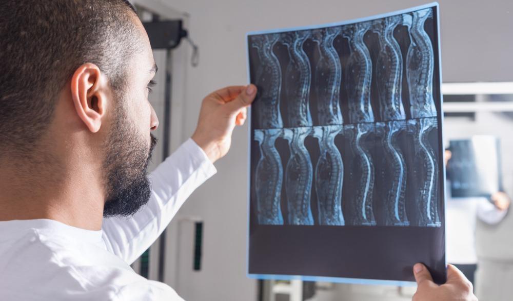 spinal injury, 3d bioprinting