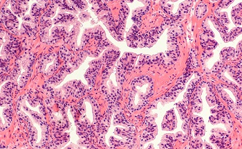 An Introduction to Label-Free Digital Pathology