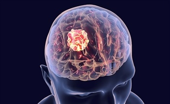 Controllers and Compact Drives for Minimally Invasive Brain Surgery