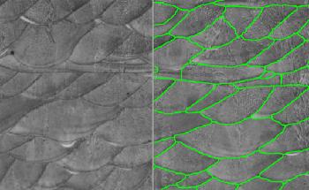 Deep Learning for Micrograph Analysis