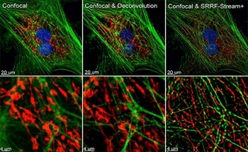 Methods of SRRF-Stream+ Super-Resolution Microscopy