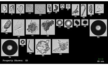 Assessing Bio-Pharmaceutical Formulations with Flow Imaging Microscopy