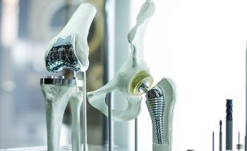 3D Printing Metallic Implants: Technologies Available and the Future of the Industry