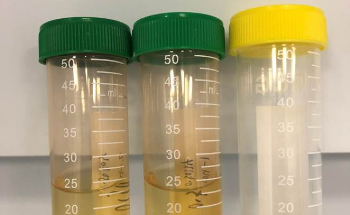 Deuterium Background Correction and Effectively Handling Digested Rice Sample Matrix