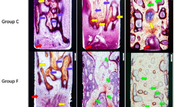 Alloys with New Antibacterial Coating to Promote Bone Growth