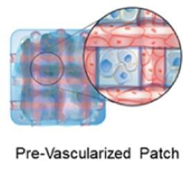 Novel Cardiac Patch Could Help Treat Myocardial Infarction Effectively