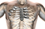 Surgeons Implant 3D Printed Sternum and Rib Cage in Spanish Cancer Patient