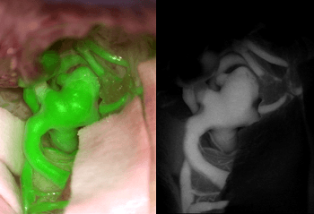Augmented Reality Imaging Supports Clinical Decision-Making for Vascular Neurosurgeons