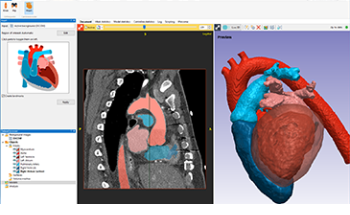 New AI-Based Heart Segmentation and Many New and Improved Features in Simpleware Q-2020.06