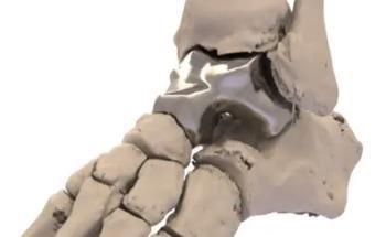 3D Printed Metal Ankle Bone is a Step Forward for Orthopedics