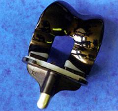 AZoM - Metals, Ceramics, Polymer and Composites : Titanium Nitride Coated Titanium Implants – Improving Performance of Implants Using Surface Coatings - diamond-like carbon coating on knee implant