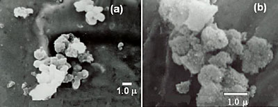 AZoJomo - The AZO Journal of Materials Online - SEM micrographs corresponding to: (a) BAS and (b) sodium dawsonite obtained at pH 10.6.